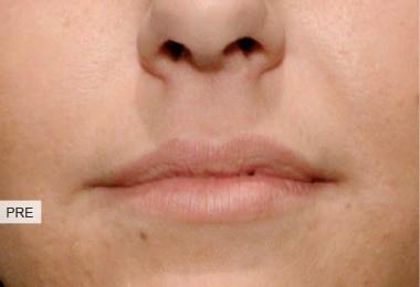 pre labbra lips asimmetria volume