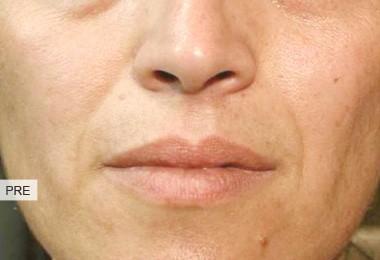 pre rughe naso geniene3